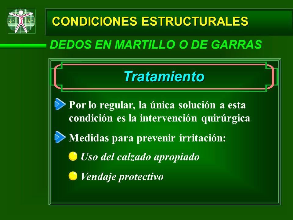 CONDICIONES ESTRUCTURALES DEDOS EN MARTILLO O DE GARRAS Tratamiento Por lo regular, la única solución a esta condición es la intervención quirúrgica M