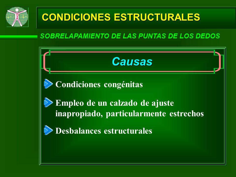 CONDICIONES ESTRUCTURALES SOBRELAPAMIENTO DE LAS PUNTAS DE LOS DEDOS Causas Condiciones congénitas Empleo de un calzado de ajuste inapropiado, particu