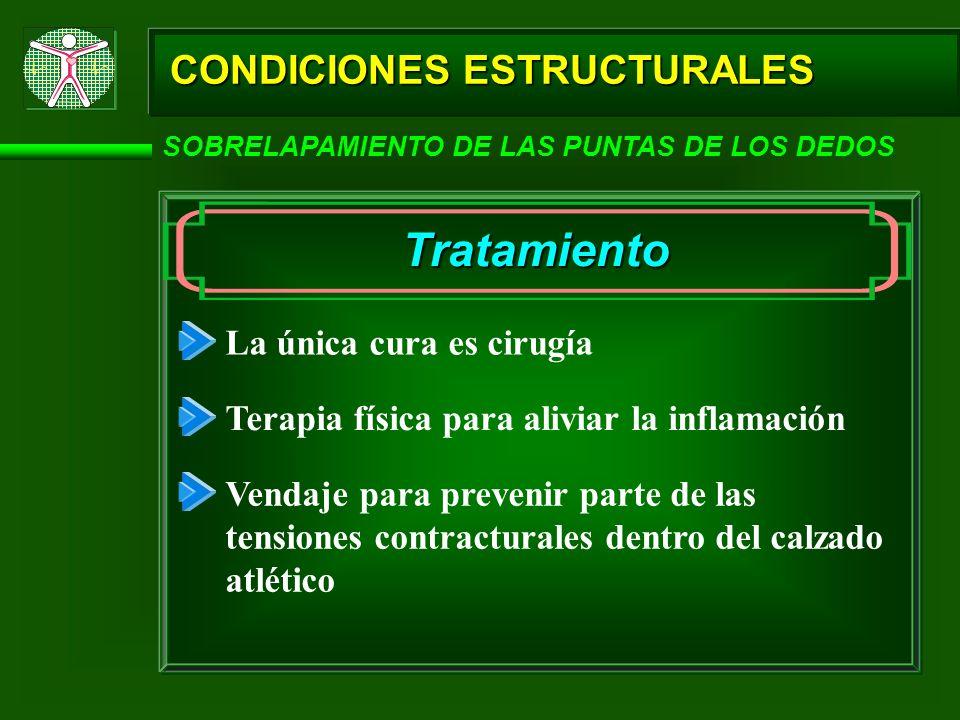 CONDICIONES ESTRUCTURALES SOBRELAPAMIENTO DE LAS PUNTAS DE LOS DEDOS Tratamiento La única cura es cirugía Terapia física para aliviar la inflamación V