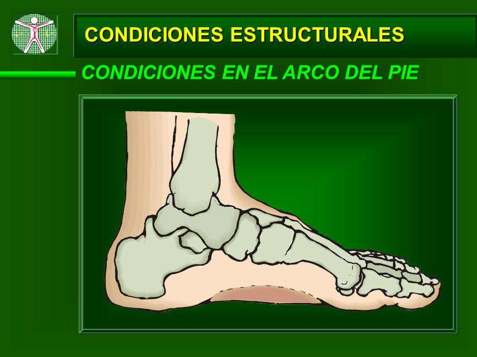 CONDICIONES ESTRUCTURALES CONDICIONES EN EL ARCO DEL PIE