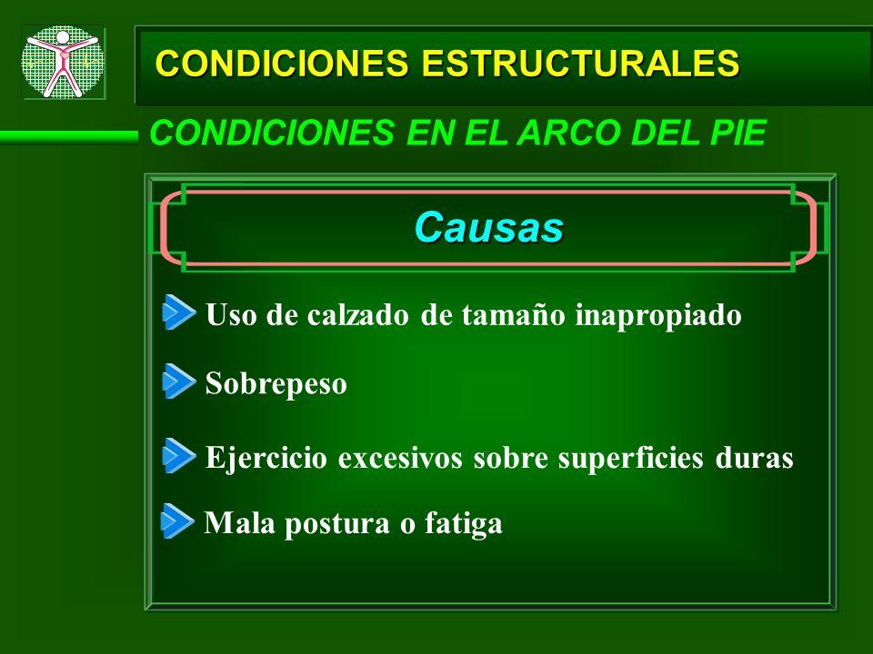 CONDICIONES ESTRUCTURALES CONDICIONES EN EL ARCO DEL PIE Causas Uso de calzado de tamaño inapropiado Sobrepeso Ejercicio excesivos sobre superficies d