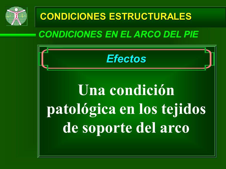 CONDICIONES ESTRUCTURALES CONDICIONES EN EL ARCO DEL PIE Efectos Una condición patológica en los tejidos de soporte del arco