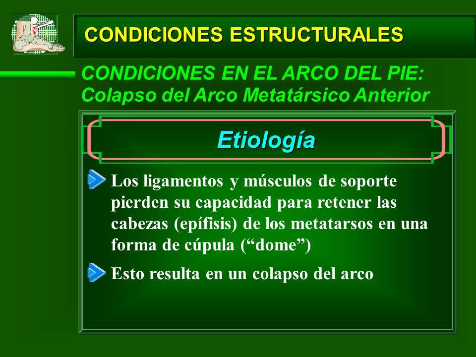 CONDICIONES ESTRUCTURALES CONDICIONES EN EL ARCO DEL PIE: Colapso del Arco Metatársico Anterior Etiología Los ligamentos y músculos de soporte pierden