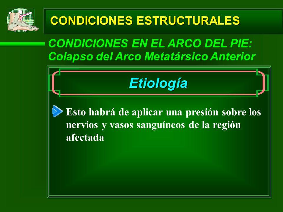 CONDICIONES ESTRUCTURALES CONDICIONES EN EL ARCO DEL PIE: Colapso del Arco Metatársico Anterior Etiología Esto habrá de aplicar una presión sobre los