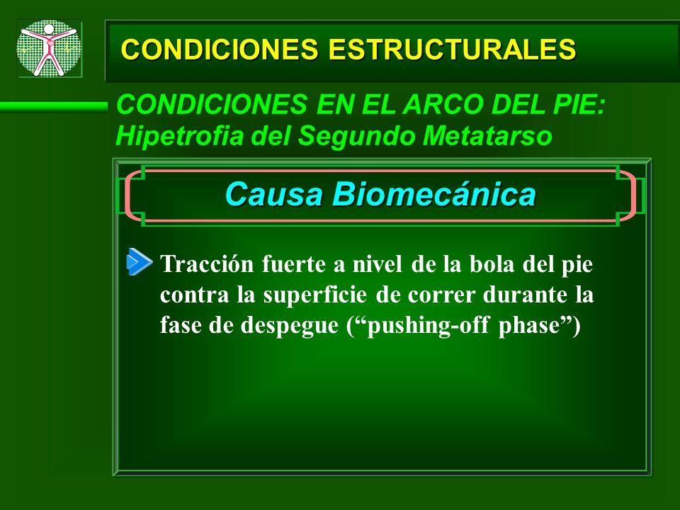 CONDICIONES ESTRUCTURALES CONDICIONES EN EL ARCO DEL PIE: Hipetrofia del Segundo Metatarso Causa Biomecánica Tracción fuerte a nivel de la bola del pi