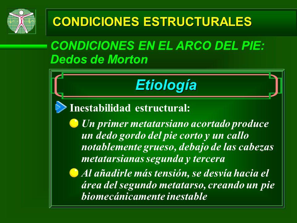 CONDICIONES ESTRUCTURALES CONDICIONES EN EL ARCO DEL PIE: Dedos de Morton Etiología Inestabilidad estructural: Un primer metatarsiano acortado produce