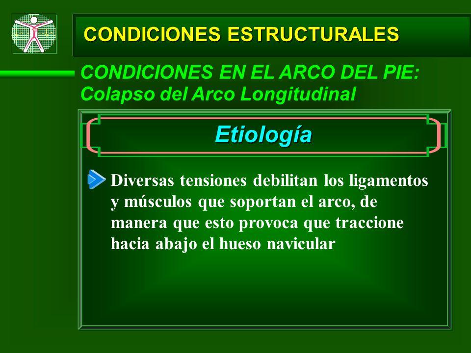 CONDICIONES ESTRUCTURALES CONDICIONES EN EL ARCO DEL PIE: Colapso del Arco Longitudinal Etiología Diversas tensiones debilitan los ligamentos y múscul