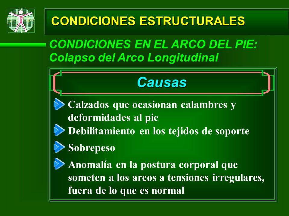 CONDICIONES ESTRUCTURALES CONDICIONES EN EL ARCO DEL PIE: Colapso del Arco Longitudinal Causas Calzados que ocasionan calambres y deformidades al pie