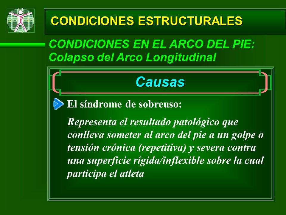 CONDICIONES ESTRUCTURALES CONDICIONES EN EL ARCO DEL PIE: Colapso del Arco Longitudinal Causas El síndrome de sobreuso: Representa el resultado patoló