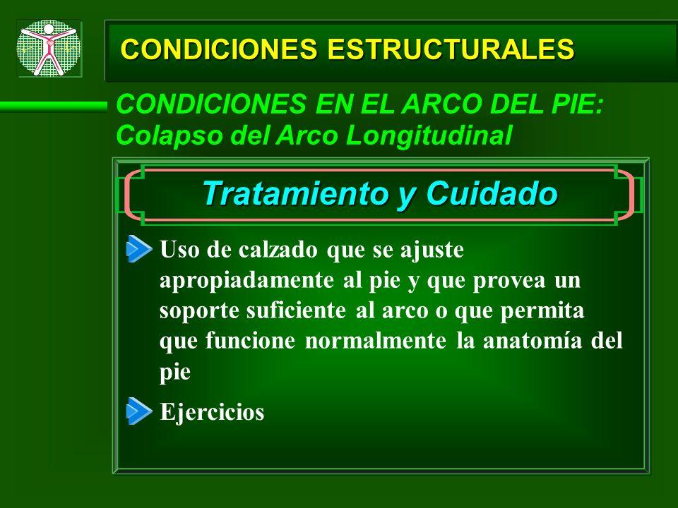 CONDICIONES ESTRUCTURALES CONDICIONES EN EL ARCO DEL PIE: Colapso del Arco Longitudinal Tratamiento y Cuidado Uso de calzado que se ajuste apropiadame