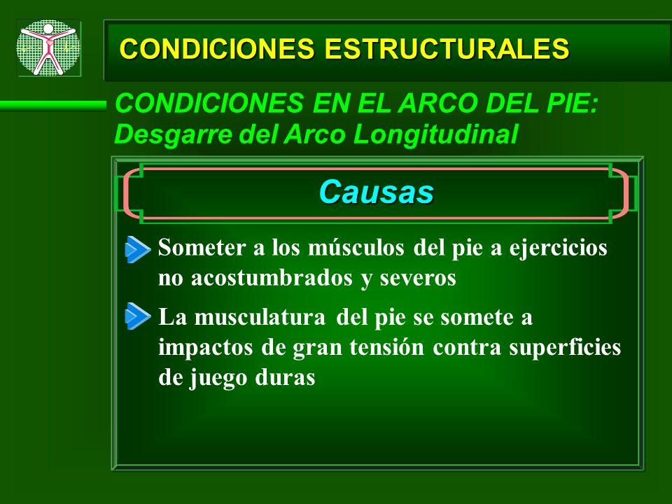 CONDICIONES ESTRUCTURALES CONDICIONES EN EL ARCO DEL PIE: Desgarre del Arco Longitudinal Causas Someter a los músculos del pie a ejercicios no acostum