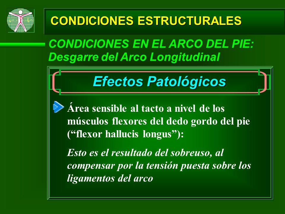 CONDICIONES ESTRUCTURALES Efectos Patológicos Área sensible al tacto a nivel de los músculos flexores del dedo gordo del pie (flexor hallucis longus):