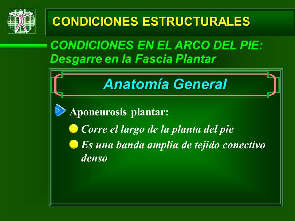 CONDICIONES ESTRUCTURALES CONDICIONES EN EL ARCO DEL PIE: Desgarre en la Fascia Plantar Anatomía General Aponeurosis plantar: Corre el largo de la pla