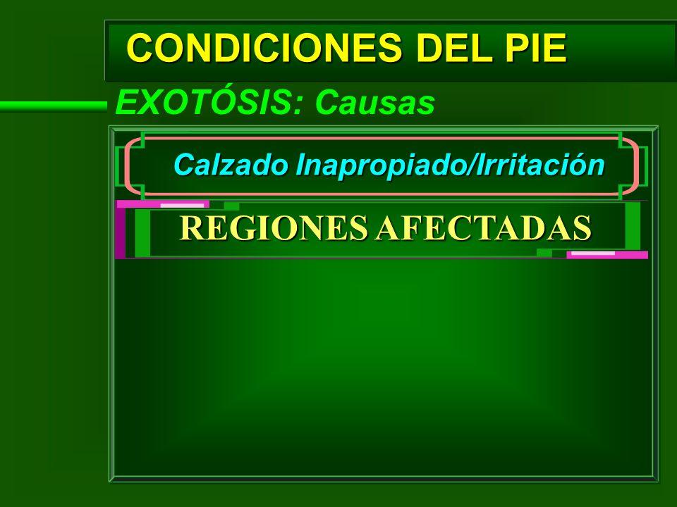 CONDICIONES DEL PIE EXOTÓSIS: Causas Calzado Inapropiado/Irritación REGIONES AFECTADAS