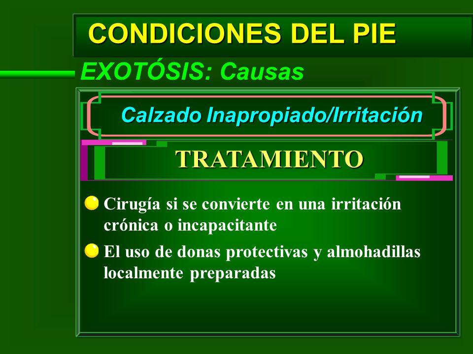 CONDICIONES DEL PIE EXOTÓSIS: Causas Calzado Inapropiado/Irritación TRATAMIENTO Cirugía si se convierte en una irritación crónica o incapacitante El u