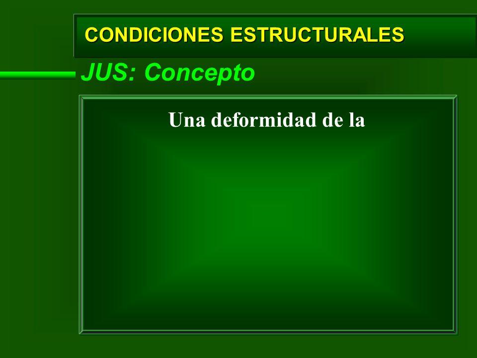 CONDICIONES ESTRUCTURALES JUS: Concepto Una deformidad de la