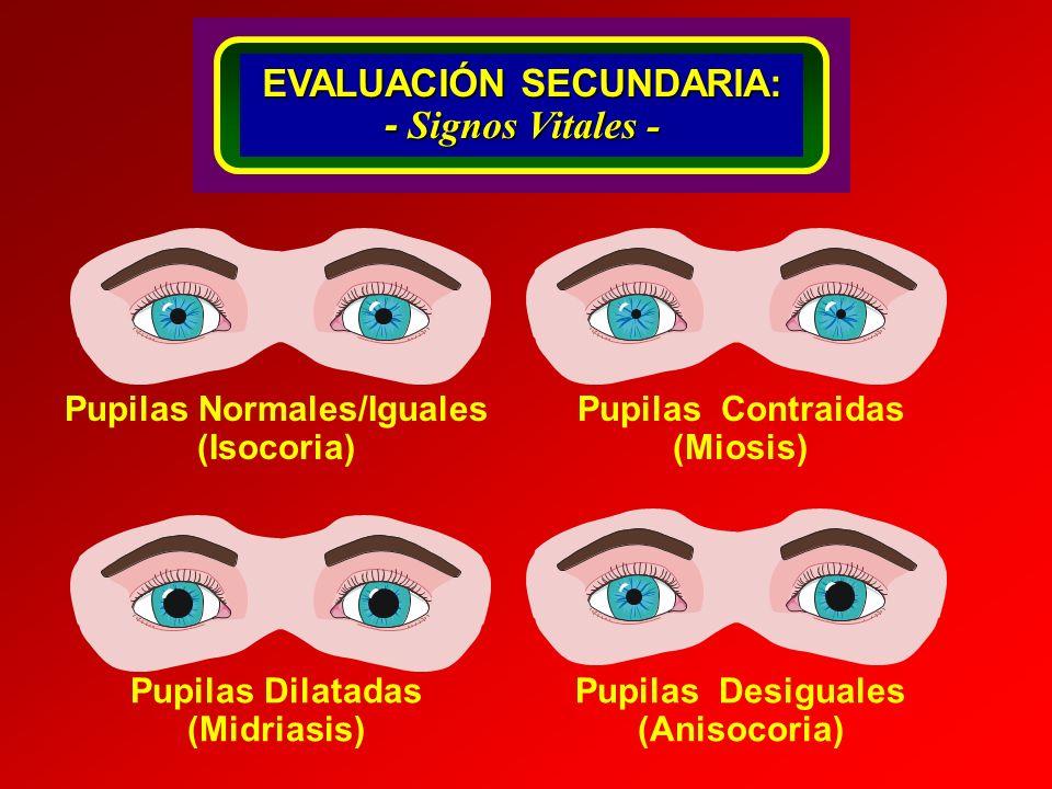 Localizaciones De las Fracturas Craneales Heridas Abiertas con Hemorragias SIGNOS DE FRACTURAS CRANEALES Ojos de Mapache Rinorragia Signo de BatallaOtorrea Fractura Craneal EVALUACIÓN SECUNDARIA