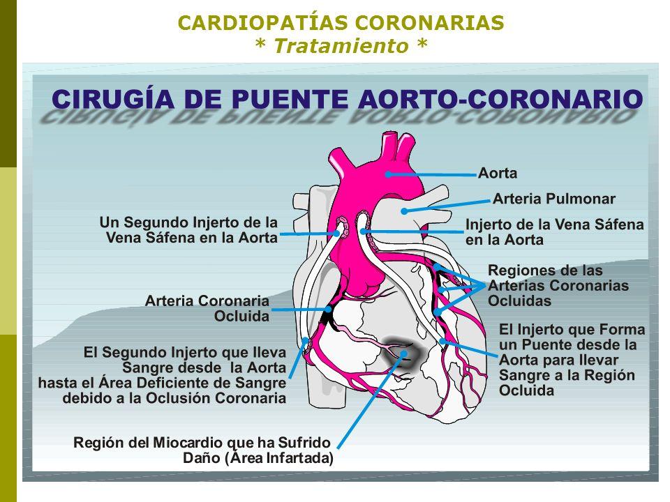 ENFERMEDADES CRÓNICAS REPASO: ENFERMEDADES CRÓNICAS * INFARTO AL MIOCARDIO (ATAQUE CARDÍACO) * Patofisiología: Zonas o regiones de un infarto al miocardio.D Signos y síntomas.
