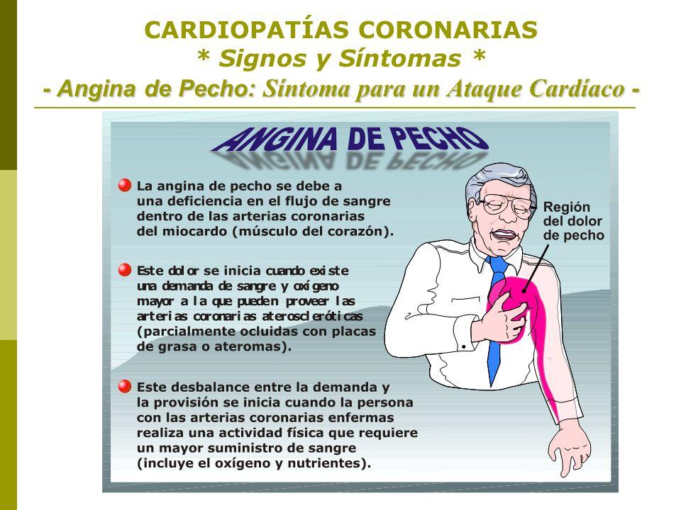 - Angina de Pecho: Síntoma para un Ataque Cardíaco - CARDIOPATÍAS CORONARIAS * Signos y Síntomas * - Angina de Pecho: Síntoma para un Ataque Cardíaco