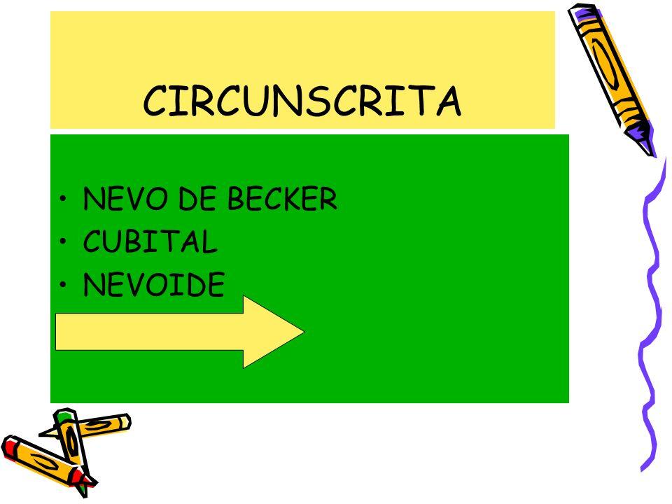 CIRCUNSCRITA NEVO DE BECKER CUBITAL NEVOIDE ADQUIRIDA