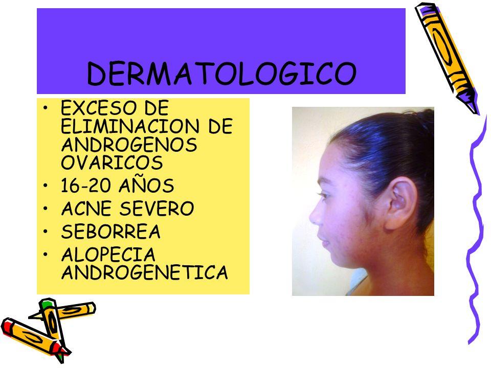 DERMATOLOGICO EXCESO DE ELIMINACION DE ANDROGENOS OVARICOS 16-20 AÑOS ACNE SEVERO SEBORREA ALOPECIA ANDROGENETICA