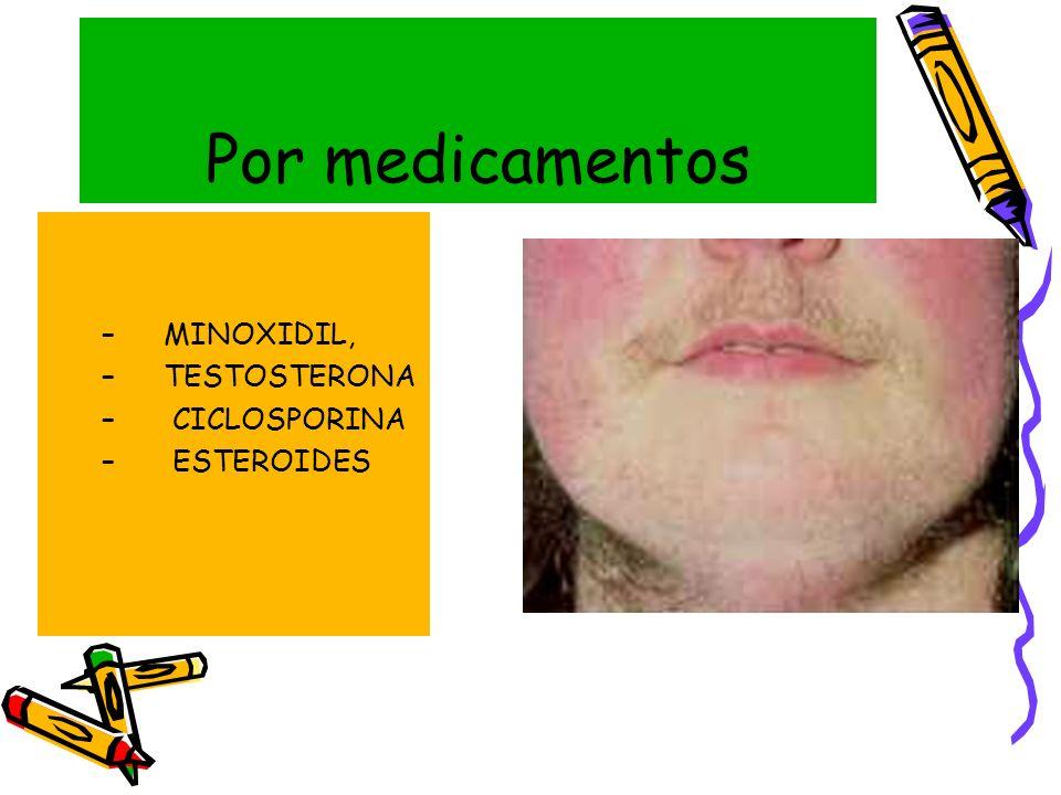 Por medicamentos –MINOXIDIL, –TESTOSTERONA – CICLOSPORINA – ESTEROIDES