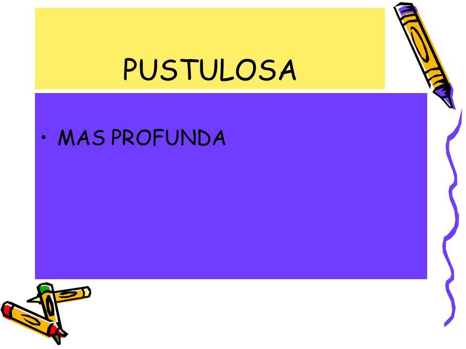 MAS PROFUNDA