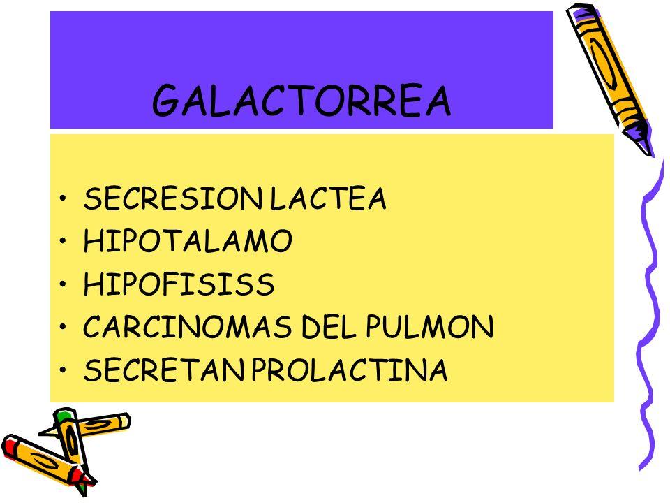 GALACTORREA SECRESION LACTEA HIPOTALAMO HIPOFISISS CARCINOMAS DEL PULMON SECRETAN PROLACTINA