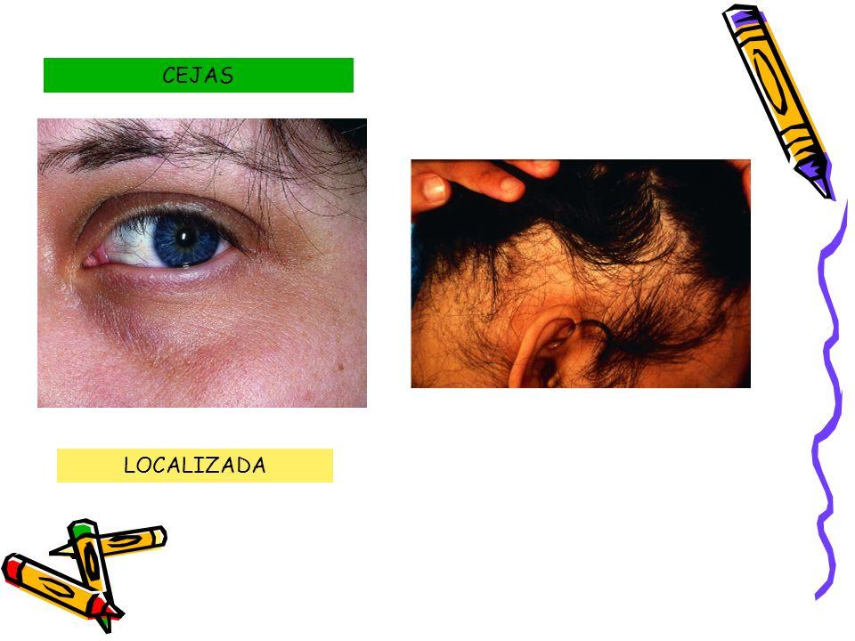 CEJAS LOCALIZADA