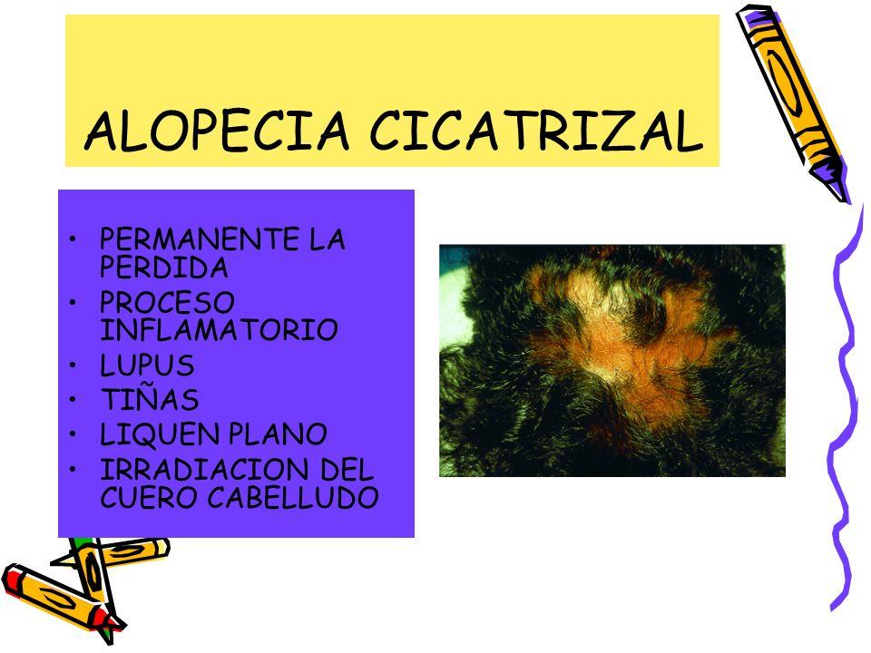 ALOPECIA CICATRIZAL PERMANENTE LA PERDIDA PROCESO INFLAMATORIO LUPUS TIÑAS LIQUEN PLANO IRRADIACION DEL CUERO CABELLUDO