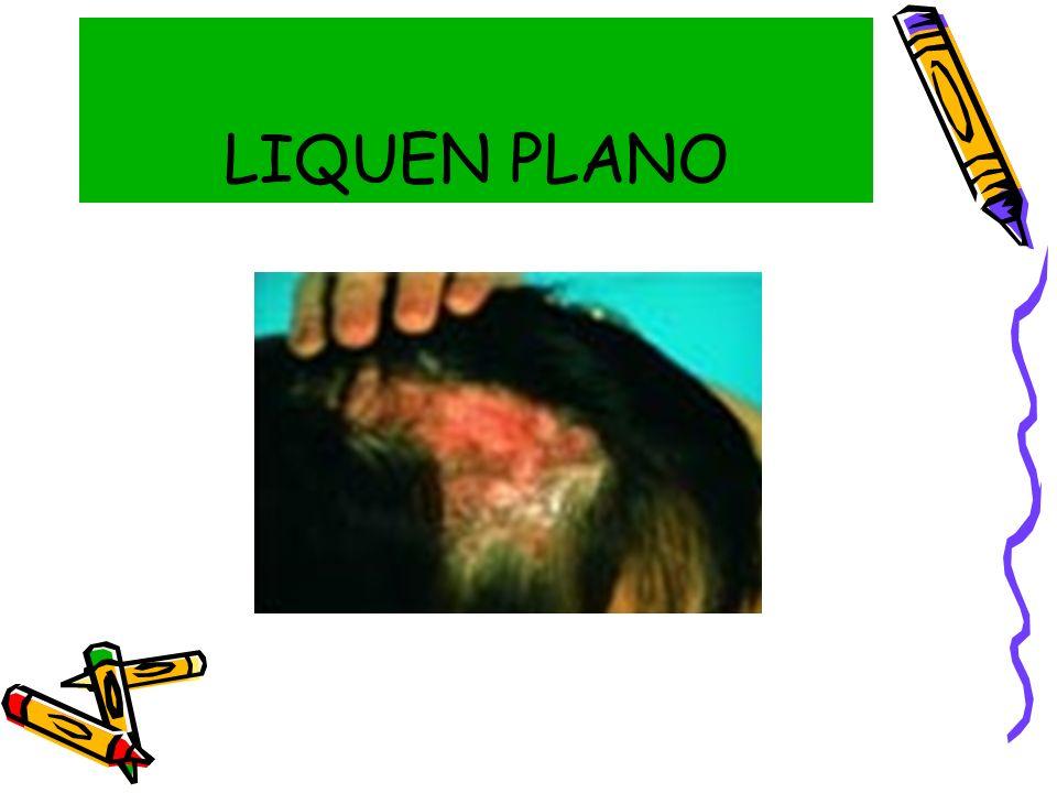 LIQUEN PLANO