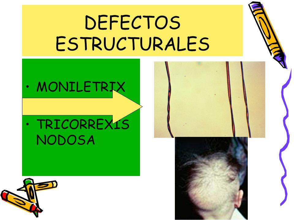 DEFECTOS ESTRUCTURALES MONILETRIX PILI TORTI TRICORREXIS NODOSA