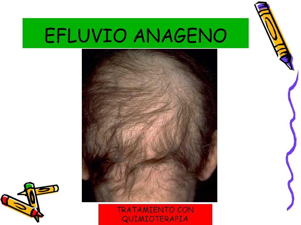 EFLUVIO ANAGENO TRATAMIENTO CON QUIMIOTERAPIA