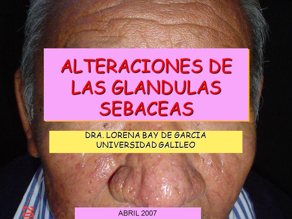 ALTERACIONES DE LAS GLANDULAS SEBACEAS DRA. LORENA BAY DE GARCIA UNIVERSIDAD GALILEO ABRIL 2007