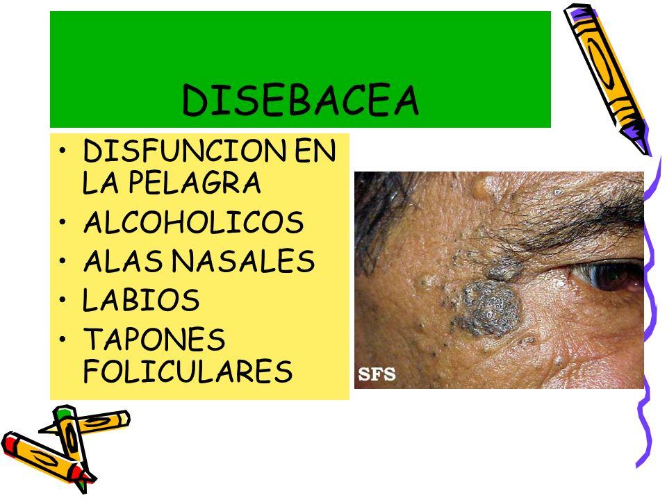 DISEBACEA DISFUNCION EN LA PELAGRA ALCOHOLICOS ALAS NASALES LABIOS TAPONES FOLICULARES