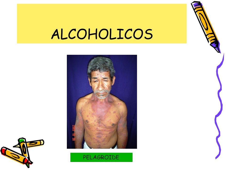 ALCOHOLICOS PELAGROIDE