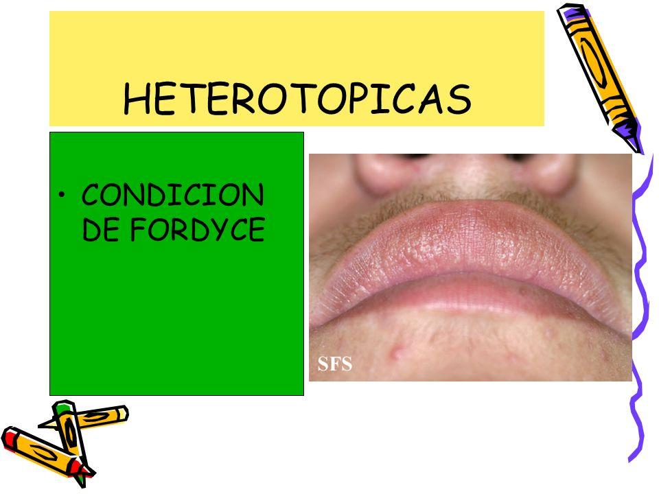 HETEROTOPICAS CONDICION DE FORDYCE