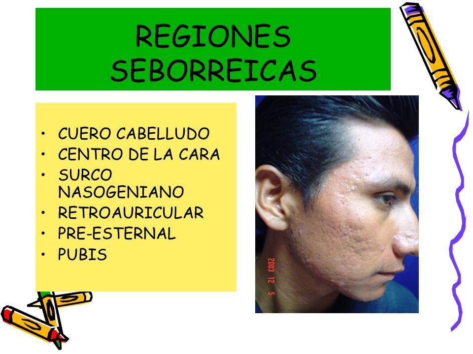 REGIONES SEBORREICAS CUERO CABELLUDO CENTRO DE LA CARA SURCO NASOGENIANO RETROAURICULAR PRE-ESTERNAL PUBIS