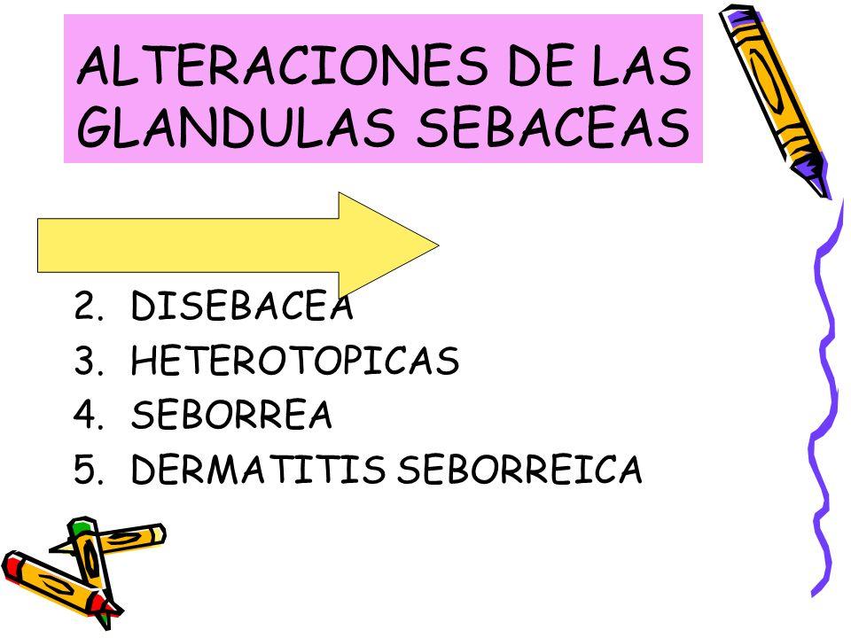 ALTERACIONES DE LAS GLANDULAS SEBACEAS 1.HIPERPLASIA 2.DISEBACEA 3.HETEROTOPICAS 4.SEBORREA 5.DERMATITIS SEBORREICA