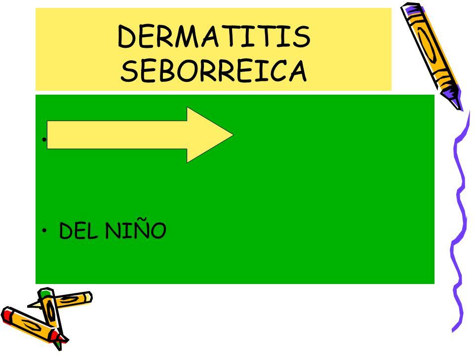 DERMATITIS SEBORREICA DEL ADULTO DEL NIÑO