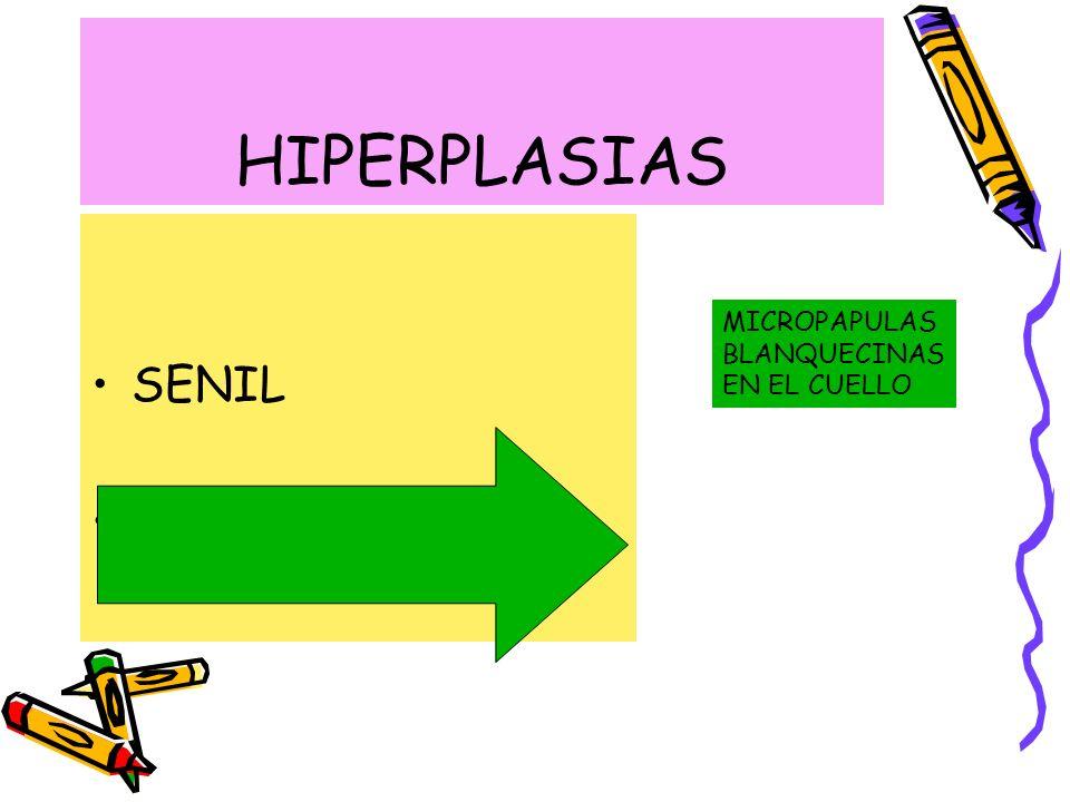 HIPERPLASIAS SENIL EN CORTICOTERAPIA MICROPAPULAS BLANQUECINAS EN EL CUELLO