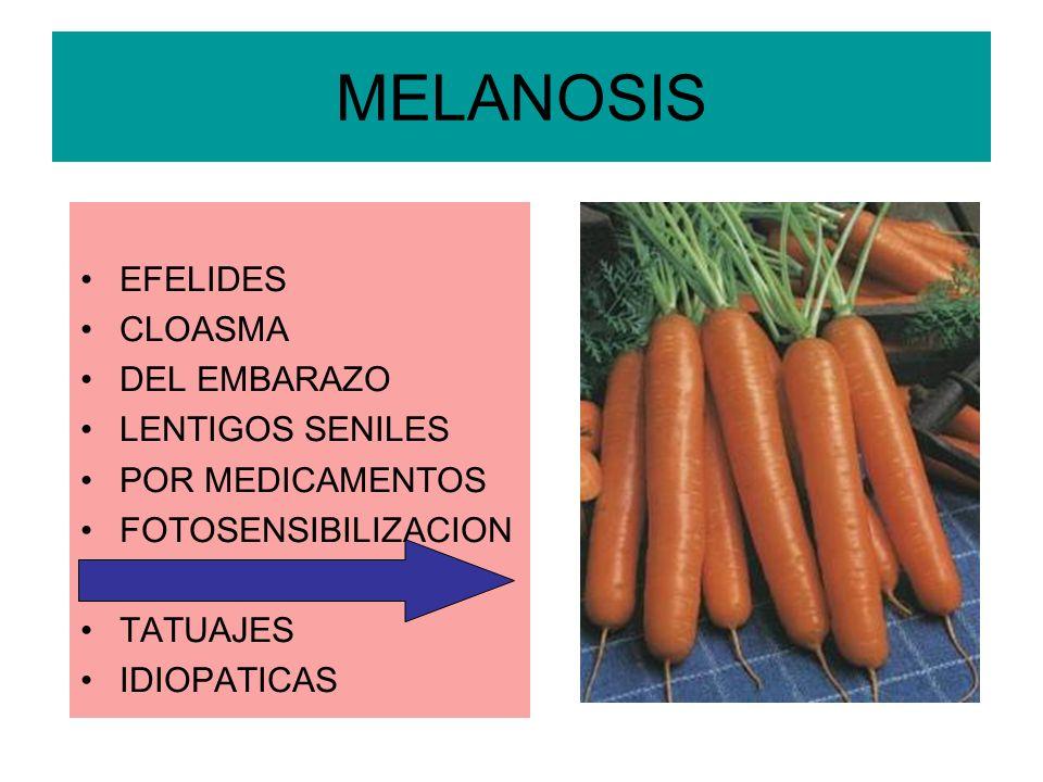 MELANOSIS EFELIDES CLOASMA DEL EMBARAZO LENTIGOS SENILES POR MEDICAMENTOS FOTOSENSIBILIZACION LIPOCROMOS TATUAJES IDIOPATICAS