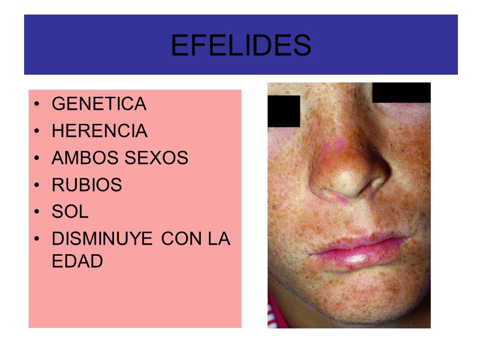 EFELIDES GENETICA HERENCIA AMBOS SEXOS RUBIOS SOL DISMINUYE CON LA EDAD