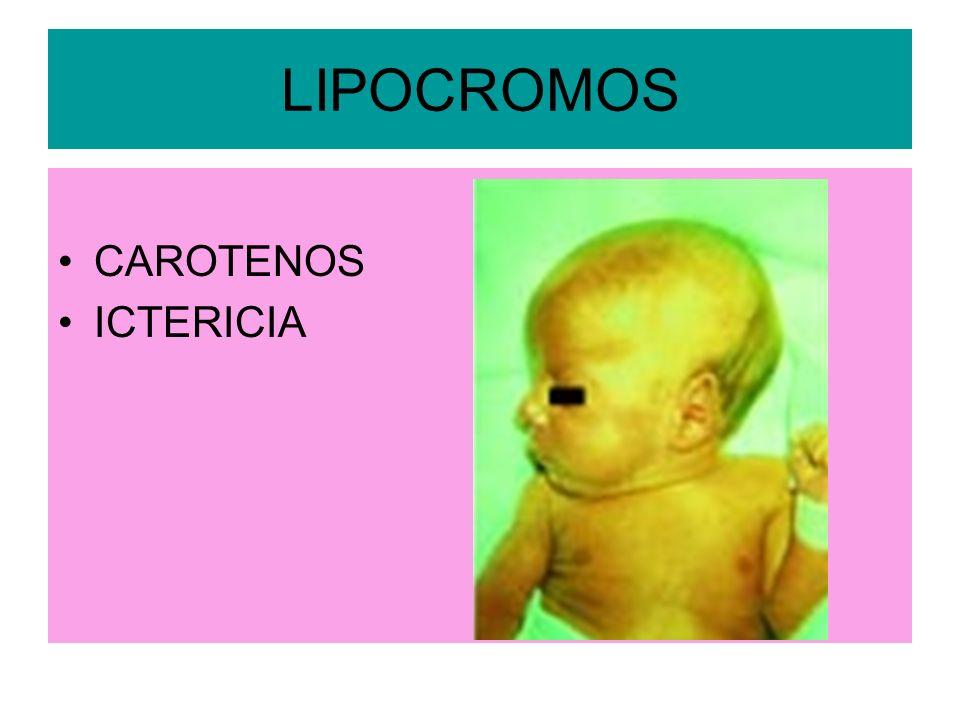 LIPOCROMOS CAROTENOS ICTERICIA