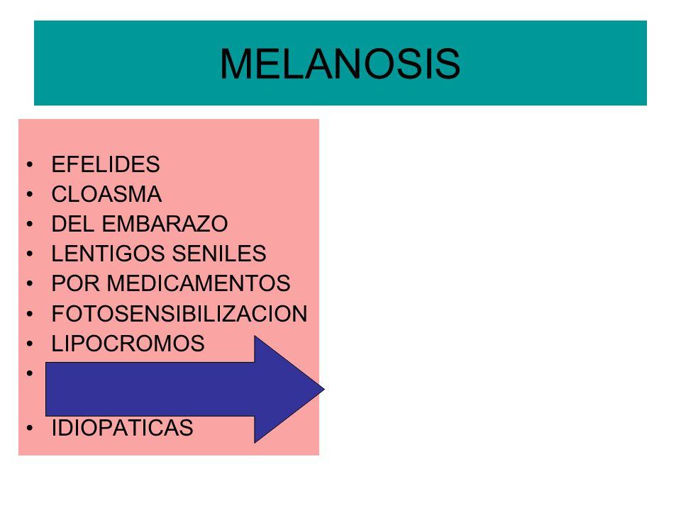 MELANOSIS EFELIDES CLOASMA DEL EMBARAZO LENTIGOS SENILES POR MEDICAMENTOS FOTOSENSIBILIZACION LIPOCROMOS HIPERPPIGMETACION POSTINFLAMATORIA IDIOPATICA