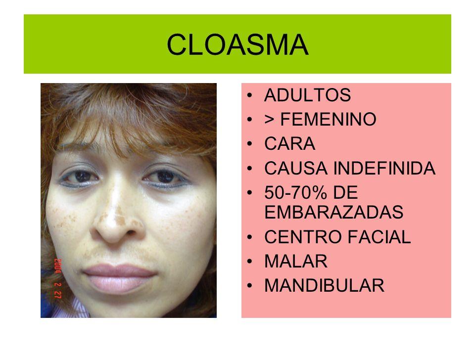 CLOASMA ADULTOS > FEMENINO CARA CAUSA INDEFINIDA 50-70% DE EMBARAZADAS CENTRO FACIAL MALAR MANDIBULAR