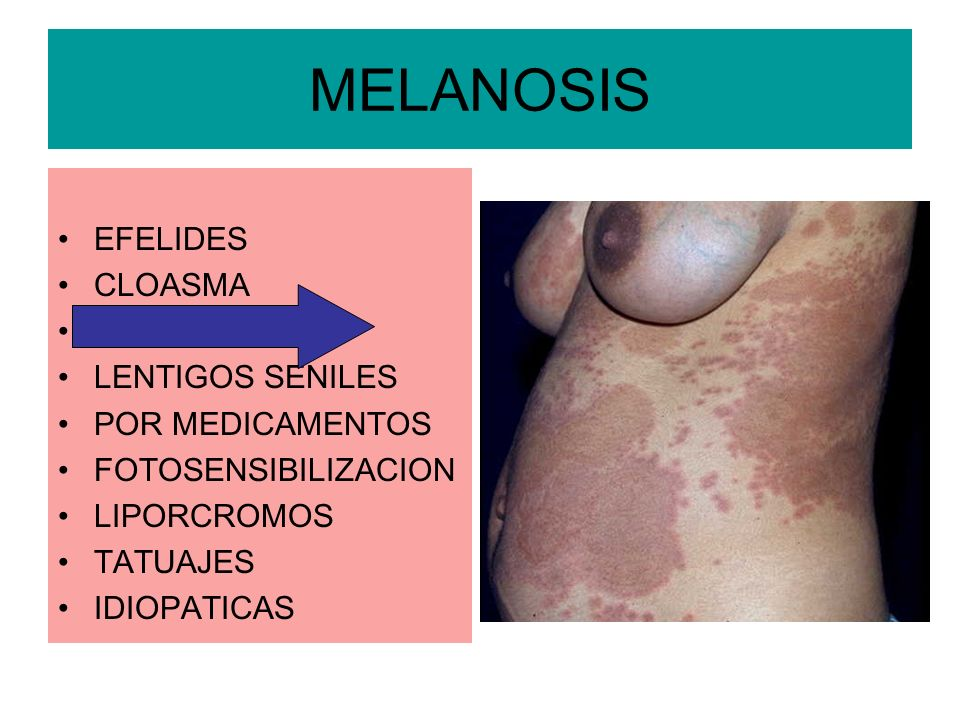 MELANOSIS EFELIDES CLOASMA DEL EMBARAZO LENTIGOS SENILES POR MEDICAMENTOS FOTOSENSIBILIZACION LIPORCROMOS TATUAJES IDIOPATICAS