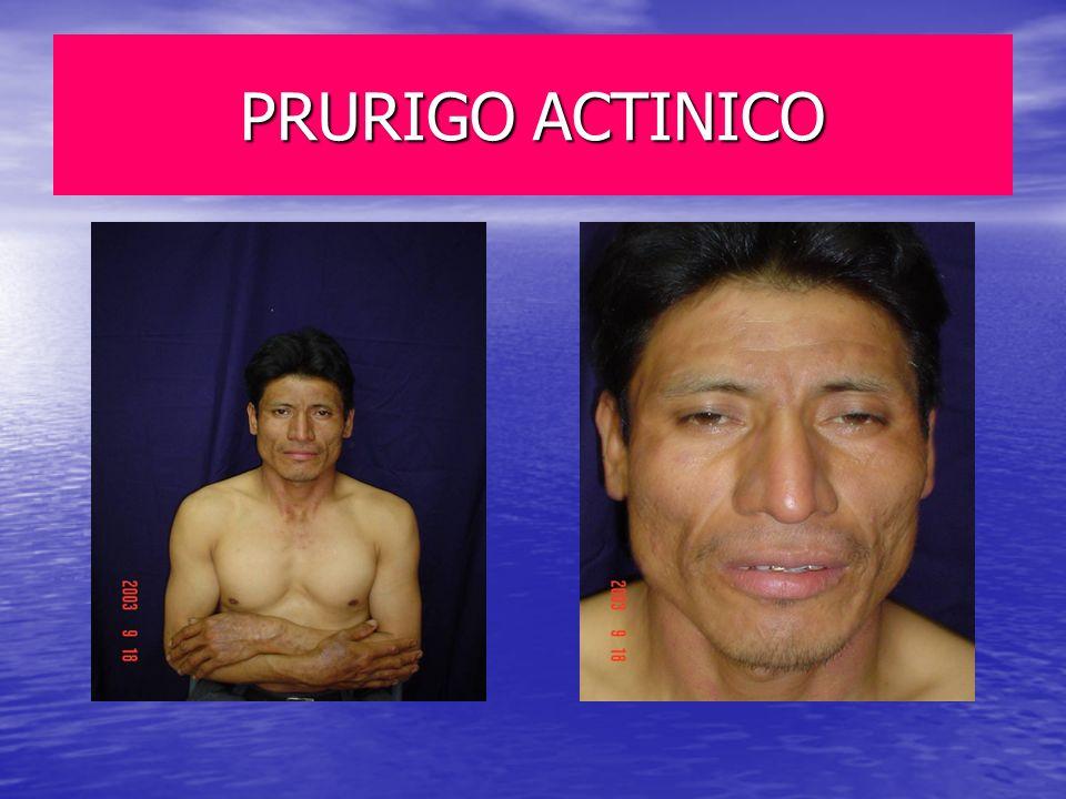 PRURIGO ACTINICO