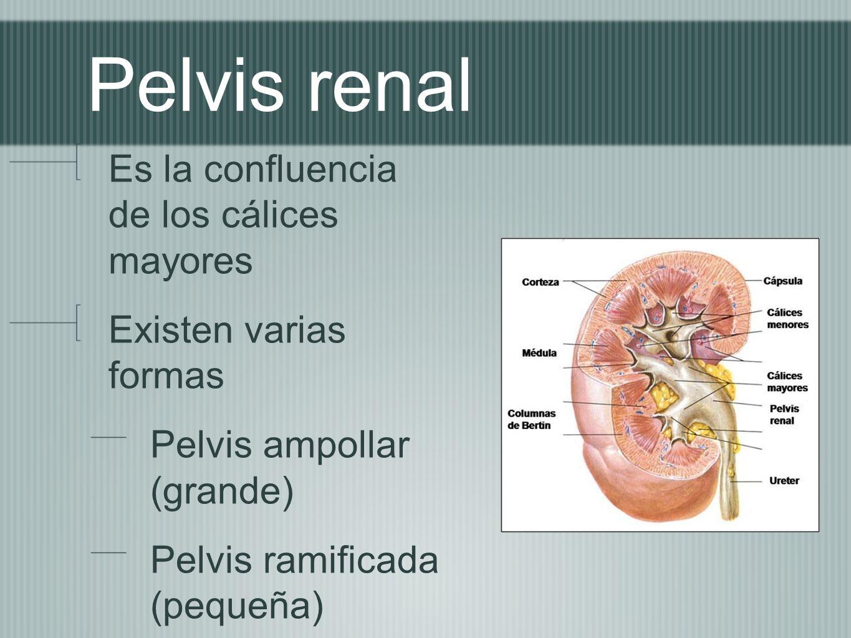 Pelvis renal Es la confluencia de los cálices mayores Existen varias formas Pelvis ampollar (grande) Pelvis ramificada (pequeña)