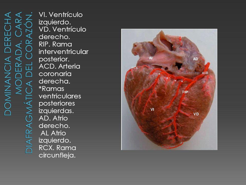 VI. Ventrículo izquierdo. VD. Ventrículo derecho. RIP. Rama interventricular posterior. ACD. Arteria coronaria derecha. *Ramas ventriculares posterior